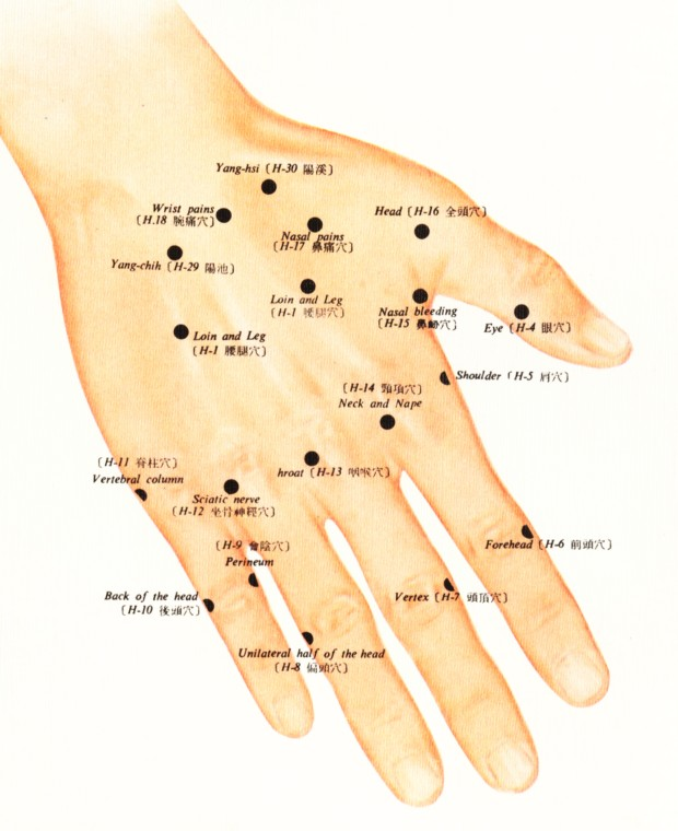 acupuncture the easy way or the hard way pdf